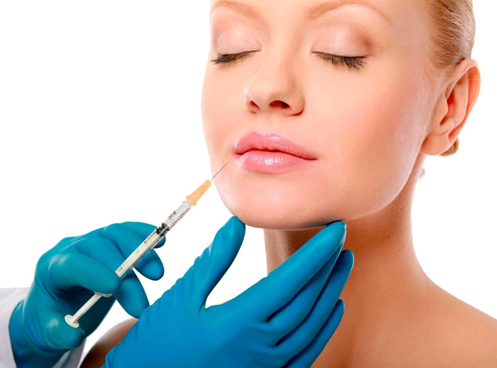 Implantes de relleno facial